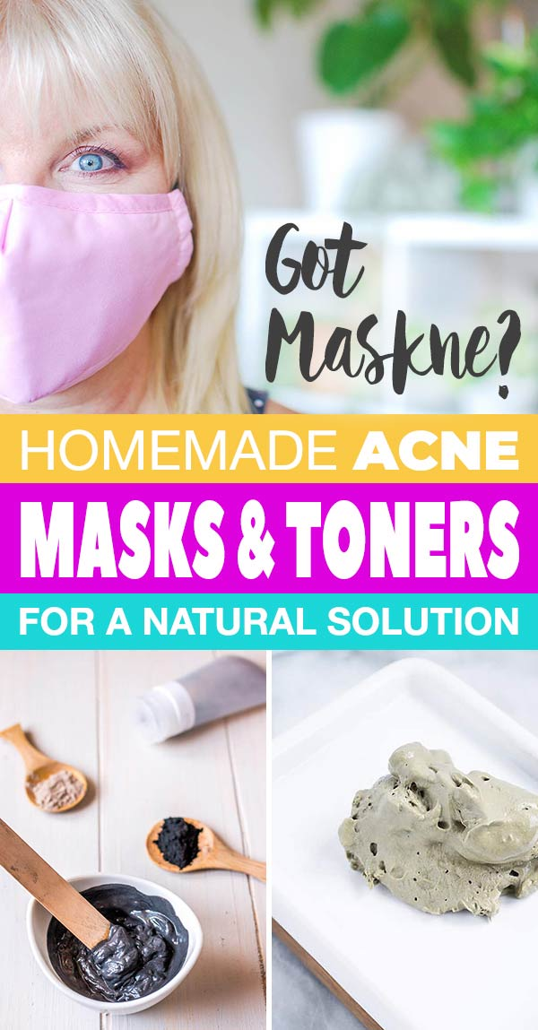 Got Maskne? Homemade Acne Masks & Toners for a Natural Solution